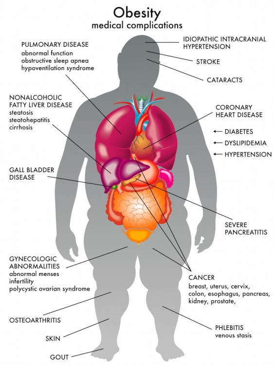 Obesity Medical Complications