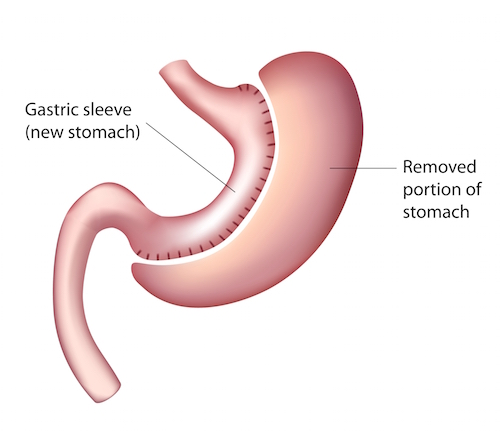 sleeve gastrectomy – facts, risks & costs | bariatric surgery, Skeleton