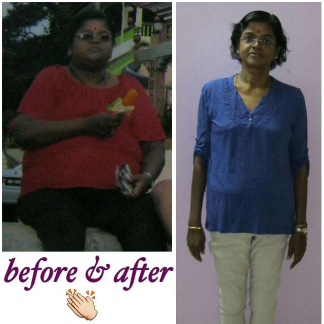 Malaysia Bariatric Surgery